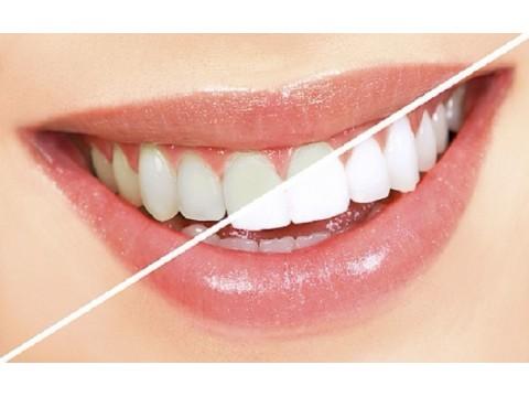 PEARLSMILE kosmetinės kasdieninio naudojimo dantų valymo servetėlės, 24 vnt