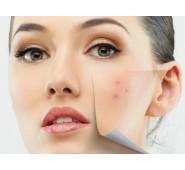Procedūra riebiai, mišriai odai, suteikianti matinį efektą su aukščiausios kokybės prancūziška ALGOLOGIE kosmetika